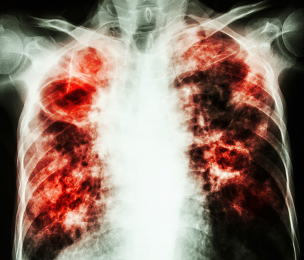 tuberculosis immune system and ongoing research A new review suggests tuberculosis could trigger autoimmunity, after finding tuberculosis bacteria 'trick' the immune system into damaging the lungs.